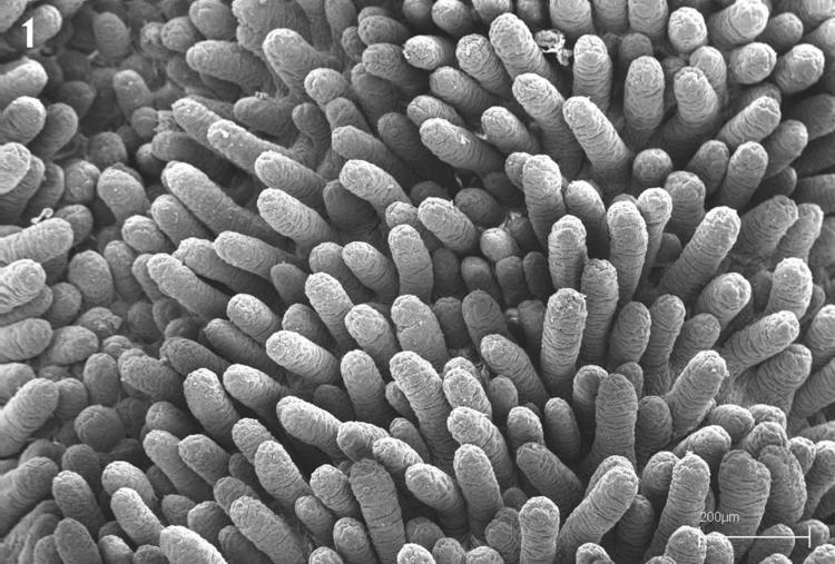 Jak zregenerować kosmki jelitowe w Celiakii?